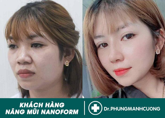 HÌNH ẢNH KHÁCH HÀNG NÂNG MŨI NANOFORM TẠI BACSISUAMUI.COM