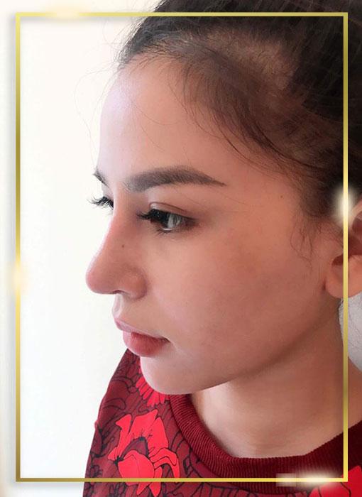 Hình ảnh khách hàng nâng mũi đẹp nổi bật