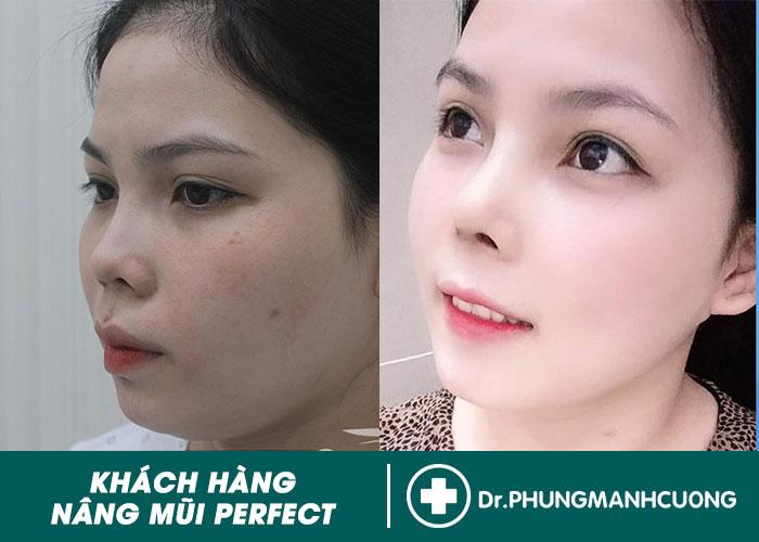 HÌNH ẢNH KHÁCH HÀNG SAU KHI NÂNG MŨI PERFECT TẠI TMV BACSISUAMUI.COM