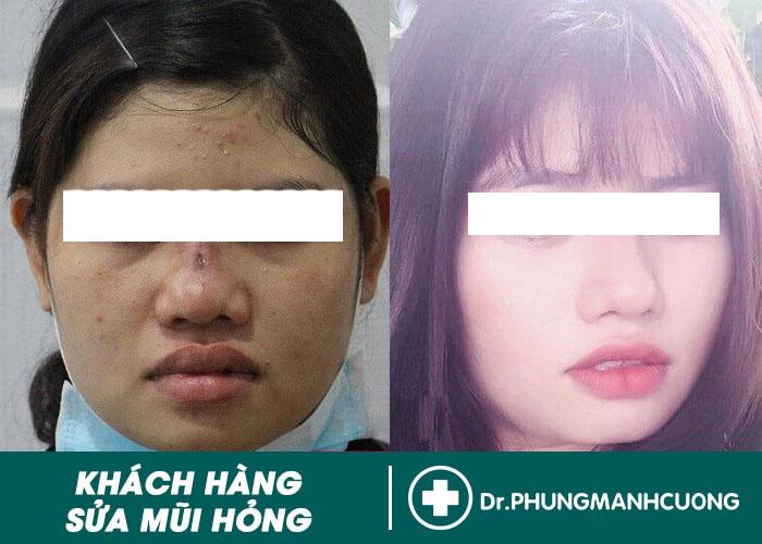 Hình ảnh khách hàng mũi bị hư hỏng nặng cần phải sửa mũi hỏng ngay