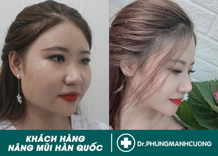 HÌNH ẢNH KHÁCH HÀNG NÂNG MŨI HÀN QUỐC TẠI BACSINANGMUI.COM