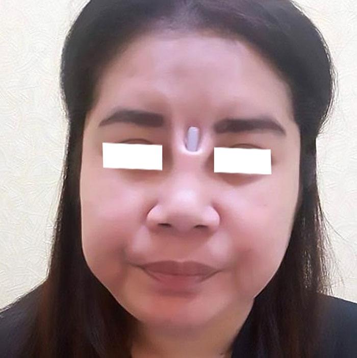 Hình ảnh khách hàng mũi bị hư hỏng nặng dẫn đến hoại tử mũi