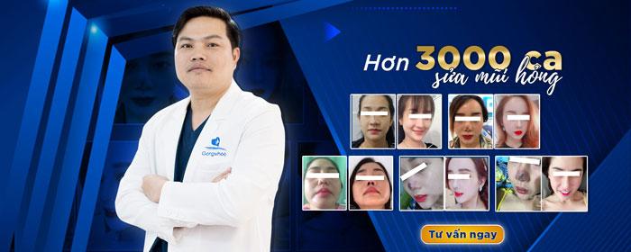 Bác Sĩ Sửa Mũi Hỏng Giải Cứu Hàng Nghìn Ca Mũi Hư Hỏng Nặng