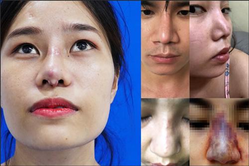 các biến chứng sau nâng mũi