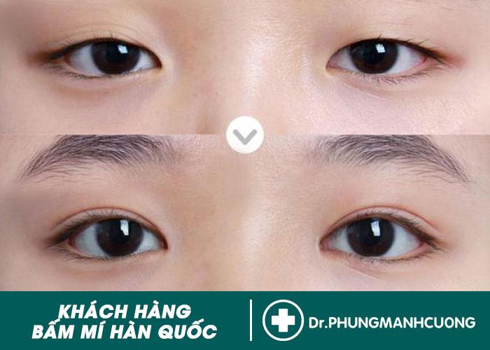 Hình Ảnh Trước & Sau Của Khách Hàng Cắt Mí, Bấm Mí Mắt Đẹp