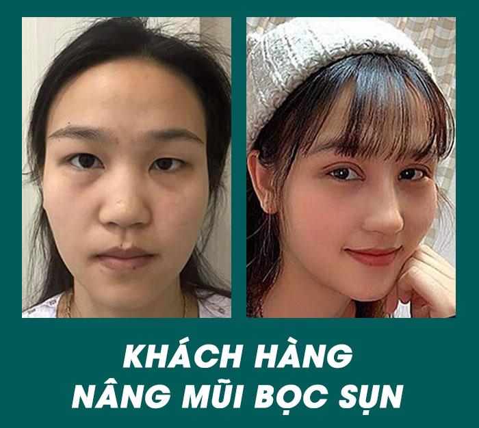 Hình ảnh trước & sau khi nâng mũi của khách hàng