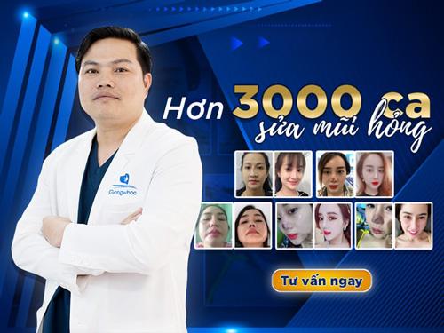 Bác sĩ sửa mũi đẹp nhất Sài Gòn