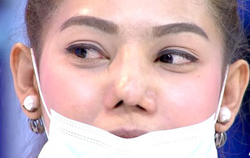 dụng cụ nâng mũi có thể gây ra tổn thương có chiếc mũi
