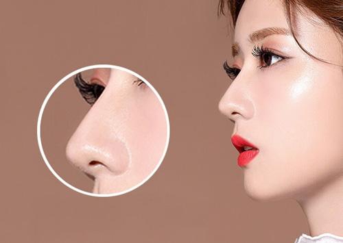 phẫu thuật nâng mũi hiệu quả vượt trội so với kẹp nâng mũi