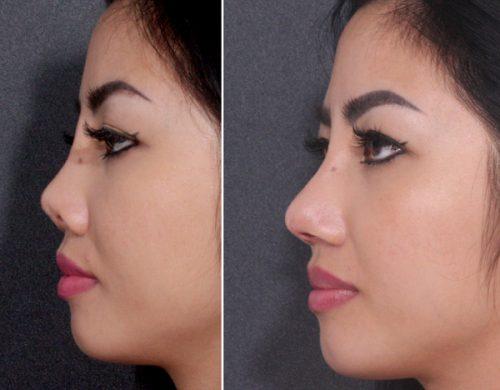 hình ảnh mũi hếch