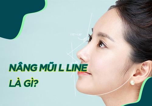 nâng mũi L line là gì