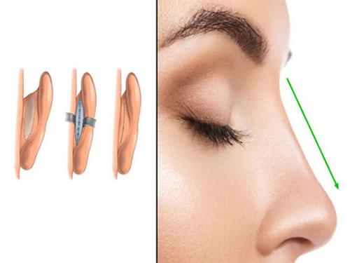 Nâng mũi bằng sụn tai được đánh giá có độ an toàn cao