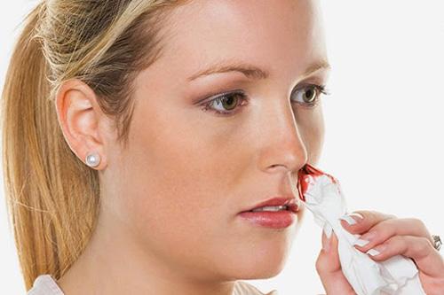 sau khi nâng mũi bị chảy máu có thể là biểu hiện nhiễm trùng