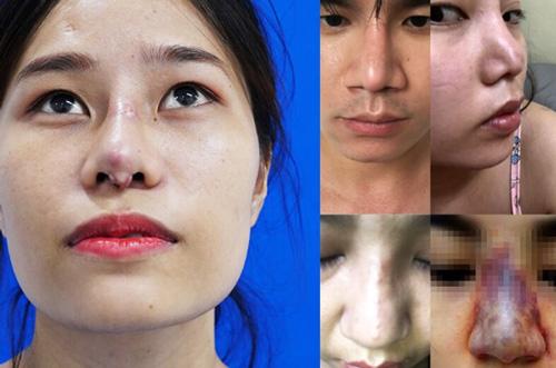 những trường hợp mũi bị hỏng sau nâng