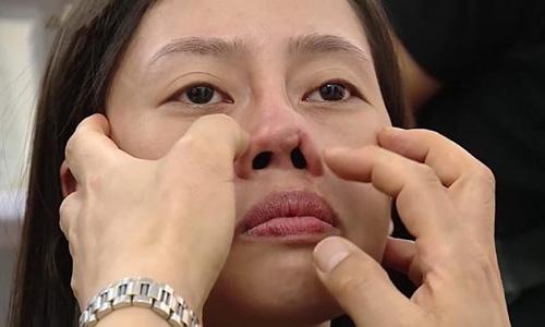 mũi bị lộ sóng, biến dạng sau khi nâng mũi