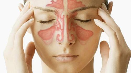 bị viêm xoang có nên nâng mũi không