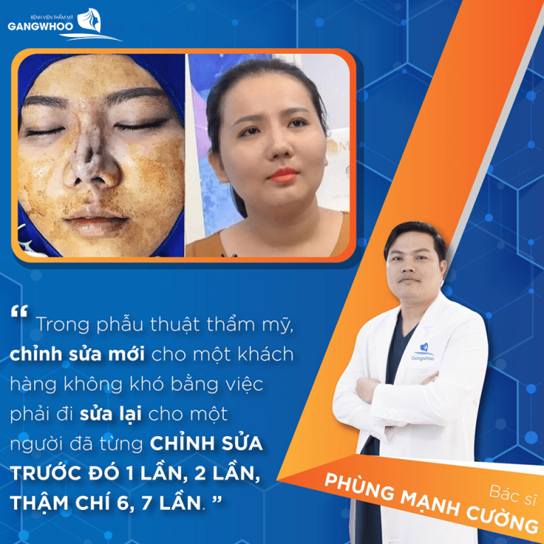 Sửa mũi hỏng sau phẫu thuật