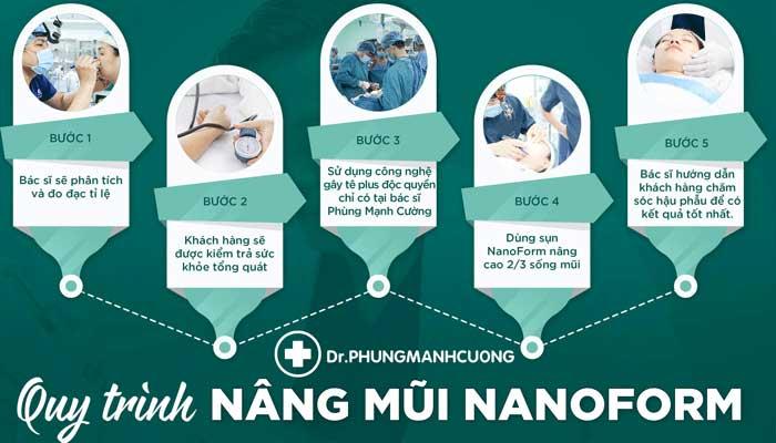 Quy trình nâng mũi cấu trúc 4D nanoform