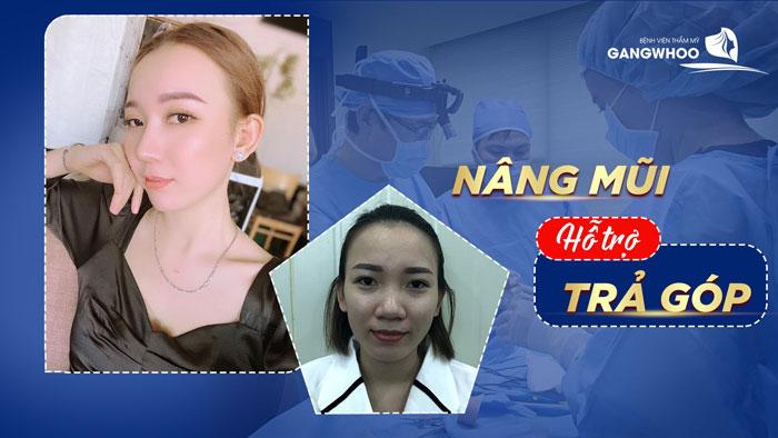 chương trình sửa mũi nâng mũi trả góp lãi suất 0% tại BVTM Gangwhoo